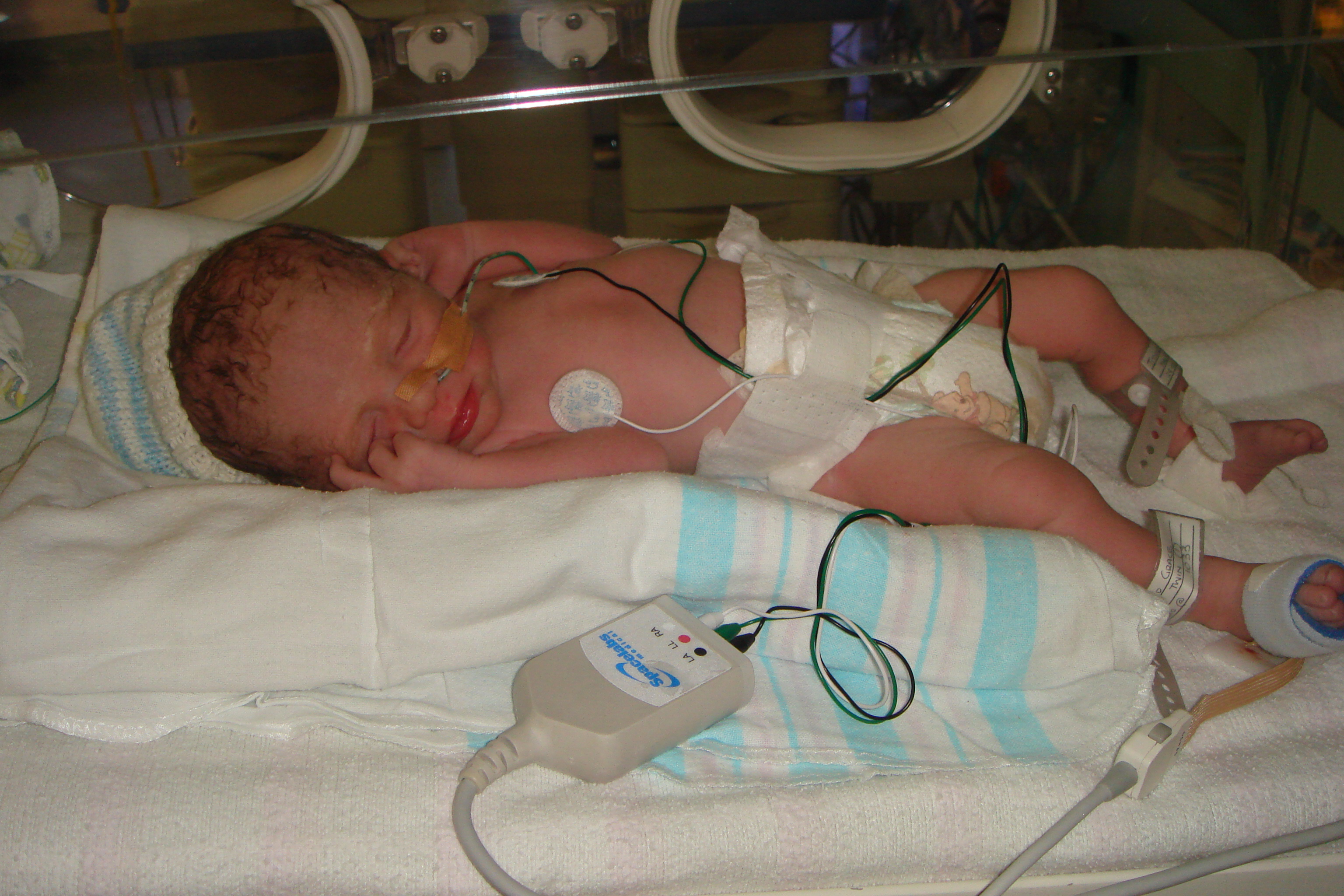 new mothers with premature babies | Musings of Mama Grace